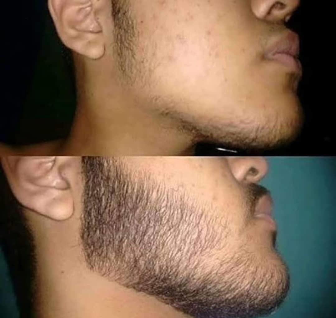 Comprar Minoxidil Original Kirkland para Barba e cabelo Kit 2 meses  importado - Minoxidil Barba viking